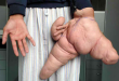 7 Gambar Manusia Dengan Bentuk Tubuh Teraneh Di Dunia 1