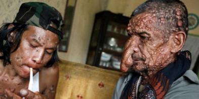 7 Gambar Manusia Dengan Bentuk Tubuh Teraneh Di Dunia 7