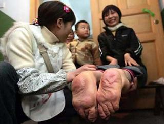 7 Gambar Manusia Dengan Bentuk Tubuh Teraneh Di Dunia